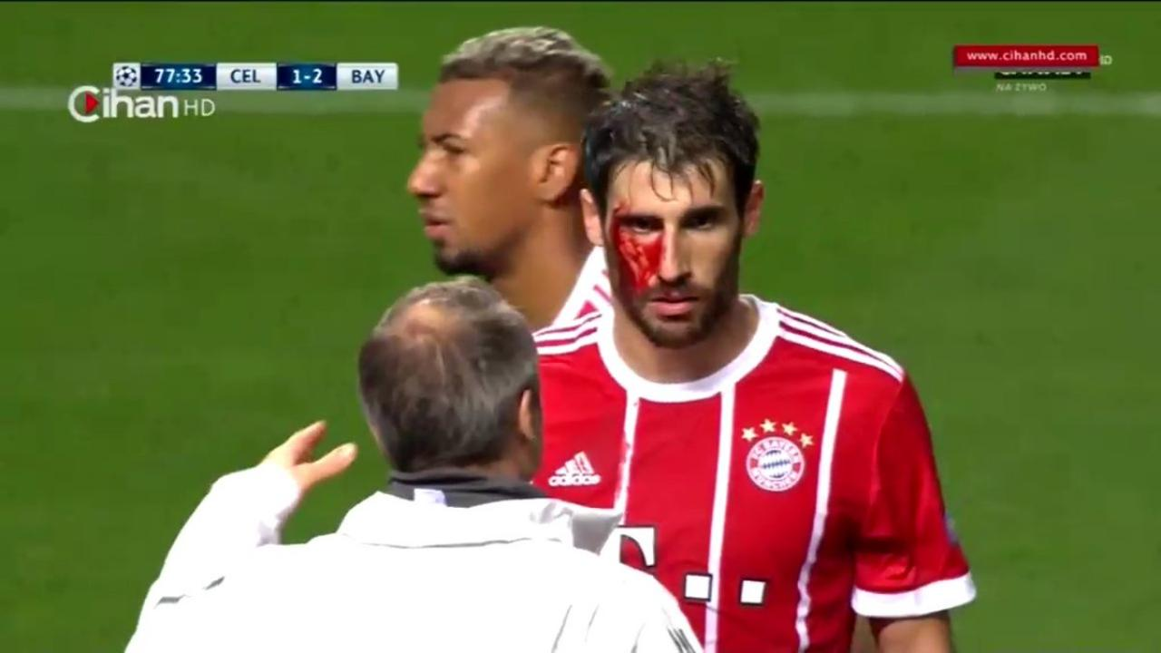 Javi Martinez bleeding