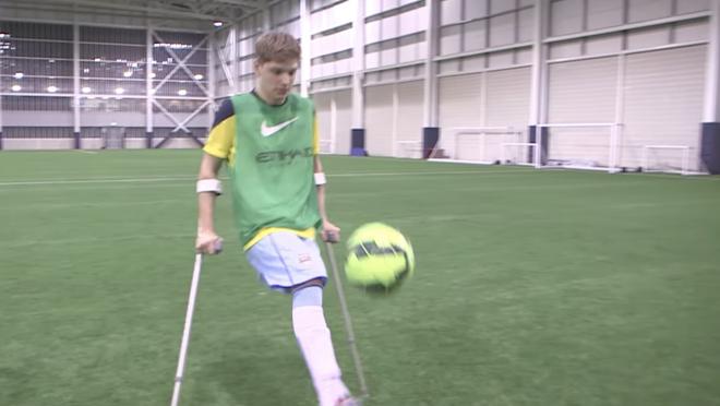 Jamie Tregaskiss Manchester City Amputee Footballer